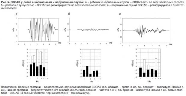 Аудиологический скрининг для проверки слуха новорожденных - что это такое и как он проводится?