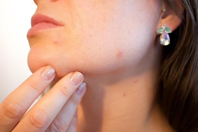 Сыпь и прыщи у ребенка на попе: причины аллергии и сухости кожи, способы лечения