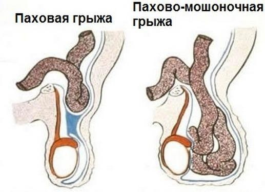 Тератозооспермия у мужчины: что это такое, как ее лечить, возможна ли беременность и каковы последствия для ребенка?