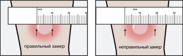 На какой день у ребенка проверяют манту, и как измерить пуговку в домашних условиях?