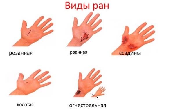 Мази для заживления ссадин и ран на коже ребенка: список эффективных средств