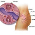 Признаки беременности тройней и двойней на ранних сроках, развитие плодов по неделям, ощущения женщины