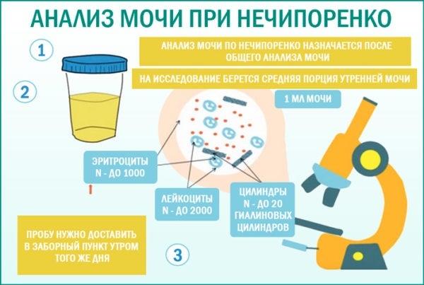 Как собрать мочу у мальчика и девочки грудничка для анализа: нюансы использования мочеприемника для новорожденных