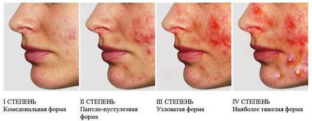 Все виды сыпи на лице у детей с пояснениями и фото: причины появления прыщиков и способы лечения