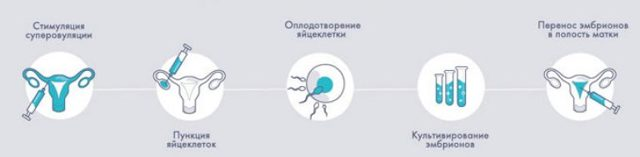 Особенности подготовки к эко: этапы проведения процедуры по дням, продолжительность и используемые препараты