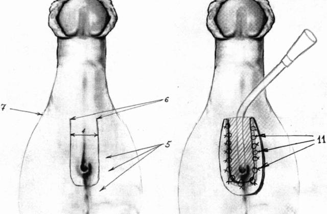 Что такое гипоспадия у мальчиков: разные формы заболевания у детей, лечение и операция