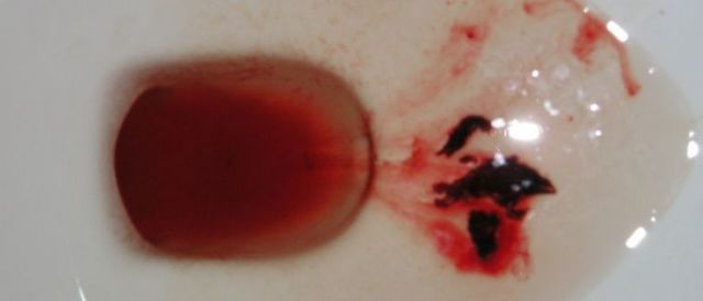 Почему во время обильных месячных выходят сгустки крови, похожие на печень, что делать?