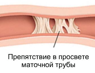 Причины полной и частичной непроходимости маточных труб, сопутствующие симптомы, диагностика и лечение