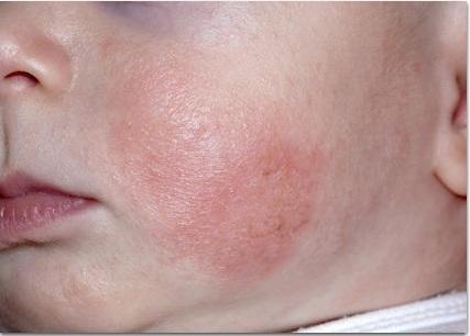 Как отличить потницу от аллергии и опрелости у грудничка, каковы их общие признаки?