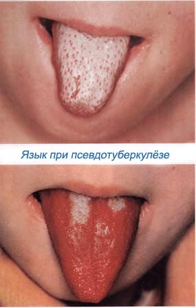 Симптомы псевдотуберкулеза у детей, лечение начальной и последующих стадий