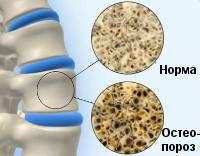 Симптомы и способы лечения ювенильного остеопороза у детей и подростков