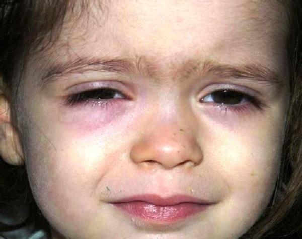 Причины возникновения красных кругов, точек или пятен под глазами у ребенка