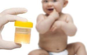Нормы показателя уровня кальция в моче у новорожденного и ребенка старшего возраста, причины повышения и понижения