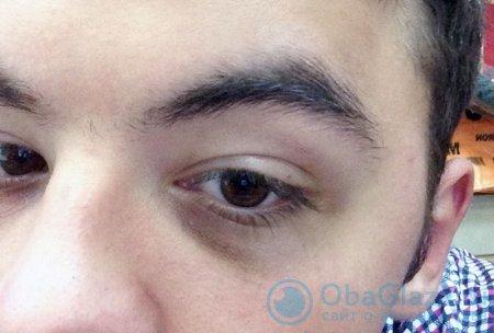 Причины темных кругов под глазами у ребенка, способы лечения и профилактики