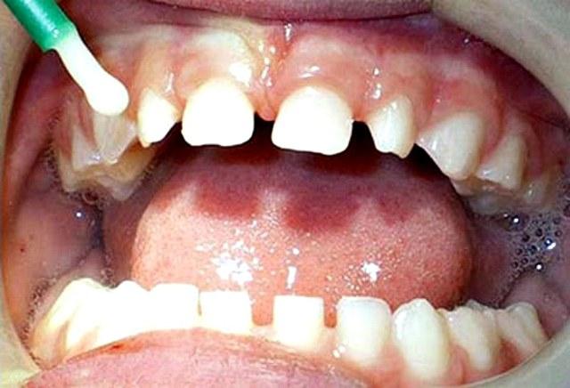 Процедура серебрения молочных зубов у детей при кариесе: преимущества метода и альтернативы