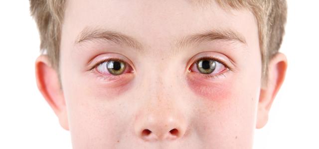 Что такое склеропластика глаз, какие есть