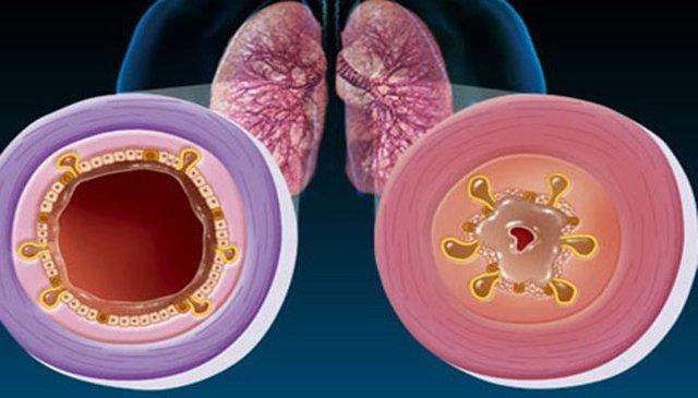 Как лечат острый обструктивный бронхит у грудничков до года: симптомы и последствия заболевания