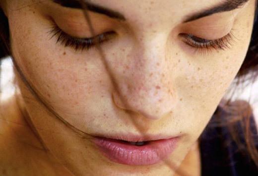 Пигментные пятна на лице и линия на животе после родов: почему появляется пигментация и как от нее избавиться?