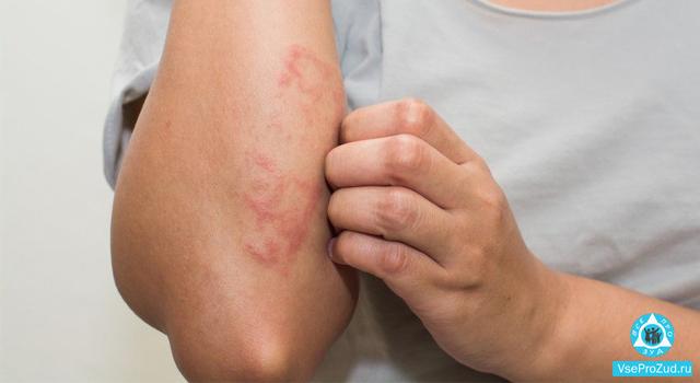 Почему у ребенка могут появиться покраснения на коже и зуд по всему телу с сыпью и без, как избавиться от проблемы?