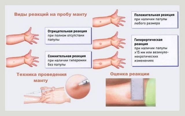 Оценка реакции манту у детей от 1 года: нормальные размеры и фото сомнительных результатов прививки