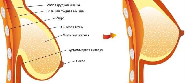 Что происходит с сосками во время беременности: как изменяется их цвет, почему они темнеют и болят?