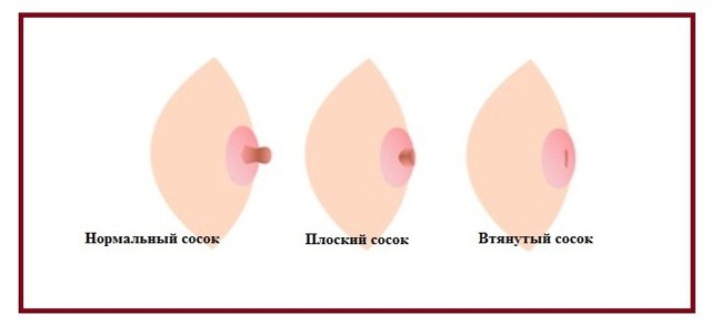 Лечение трещин на сосках при грудном вскармливании: обзор средств, кремов и мазей для кормящей матери