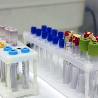 Общий анализ крови из пальца нужно сдавать натощак или нет, можно ли кормить детей перед процедурой?