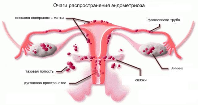 Можно ли забеременеть при разных стадиях эндометриоза матки или после лечения, влияет ли патология на развитие плода?