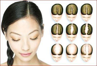 Что делать, если после родов сильно выпадают волосы: каковы особенности лечения, можно ли остановить этот процесс?