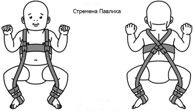 Профилактика дисплазии тазобедренных суставов техникой широкого пеленания: пошаговый видео-урок